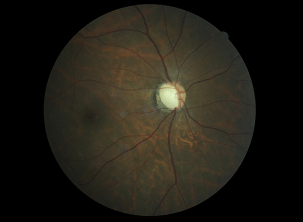 Advanced Glaucoma